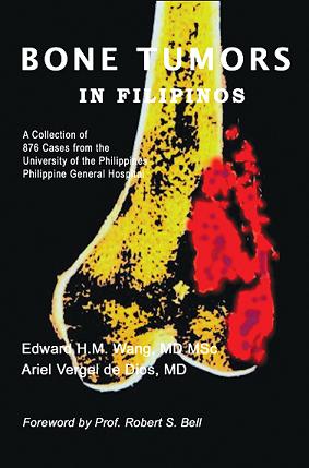 Buy Bone Tumors in Filipinos book