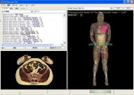 VH Dissector software