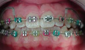 Order Dental Braces