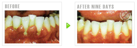 Order Periodontal Care