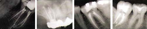 Order Endodontic Care