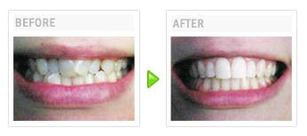 Order Orthodontic Care