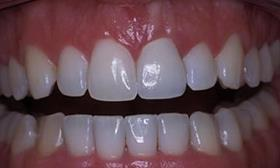Order Orthodontic teeth care