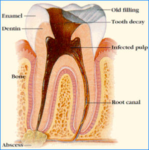 Order Root Canals