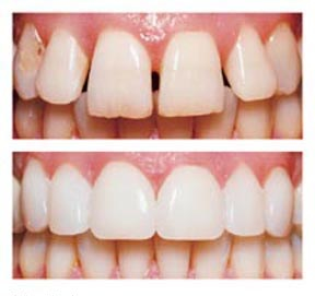 Order Cosmetic Dentistry