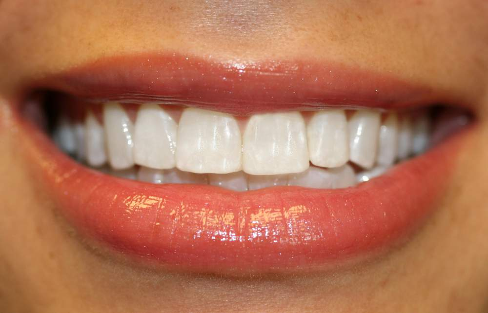 Order Tooth-colored Restorations