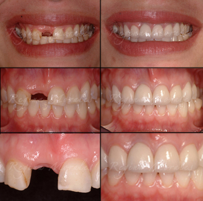 Order Single Tooth Replacement