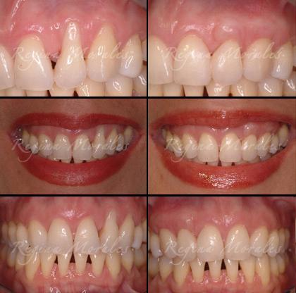 Order Long Teeth/Exposed Roots