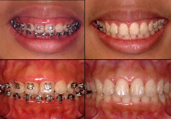 Order Gingival Shaping