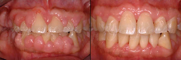 Order Gingival Overgrowth