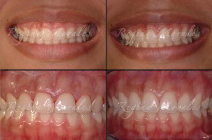 Order Gummy Smile/Uneven Gumline