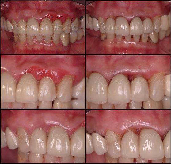 Order Laser Periodontal Therapy