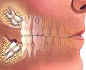 Order Impacted Teeth Surgery