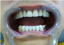 Order Telescopic Dentures