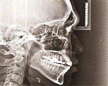Order Cephalometric X-ray