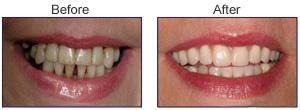 Order Dentures (Plastic & Porcelain Dentures)