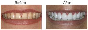 Order Teeth Whitening