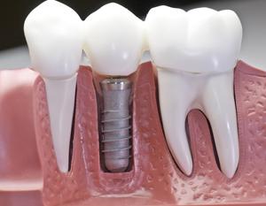 Order Implant Dentistry