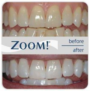 Order Teeth Whitening