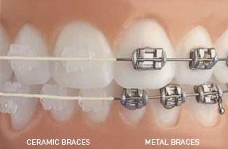 Order Orthodontics Service