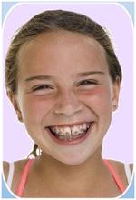 Order Dental Sealants for Children