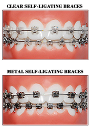 Self –Ligating Braces