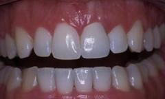 Orthodontic teeth care