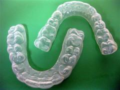 Customized Bleaching Trays