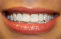 Tooth-colored Restorations