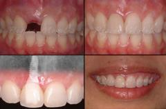 Missing Teeth Dental Implants