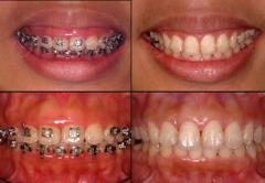 Gingival Shaping