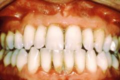 Periodontal (Gum Disease)