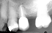 Periapical X-rays Service