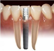 The Dental Implant Surgery