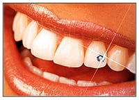 Tooth Jewelry after Whitening
