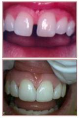 Diastema Space Closure