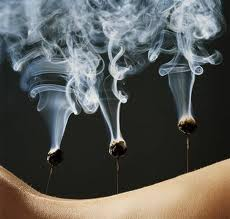 Acupuncture with Moxibustion