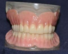 Dentures, removable; False teeth; Partials; Plates.